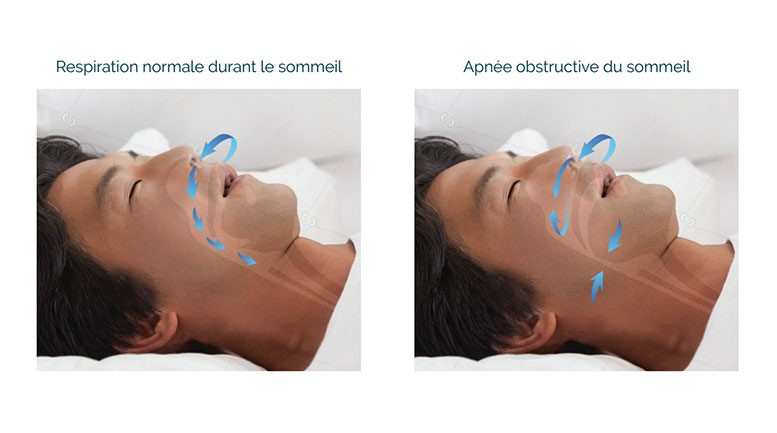 Respiration normale / Apnée obstructive