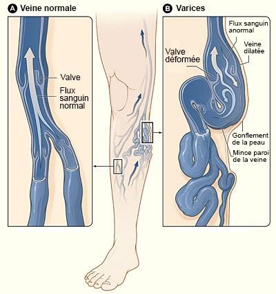 varices-jambes-veines
