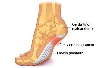 douleur arche pied