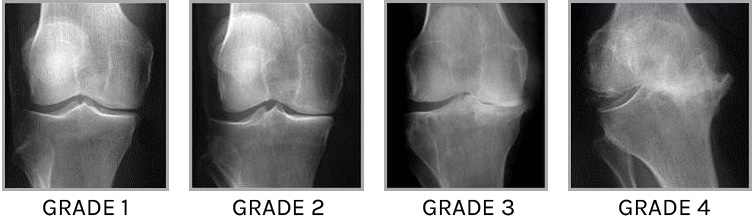 arthrose-genou-cartilage