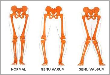 genou-normal-genu-varum-valgum